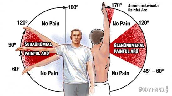 Плечо атлета: Причина боли
