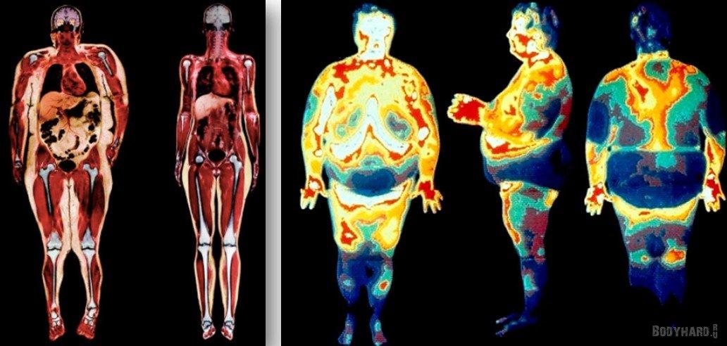 подкожный жир фото живот