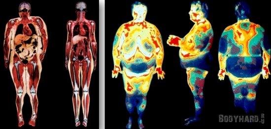 состоит жир на животе